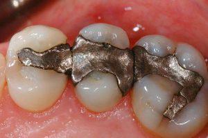 عيادات أطباء الأسنان وعمليات السباكة والمشرع البيئي