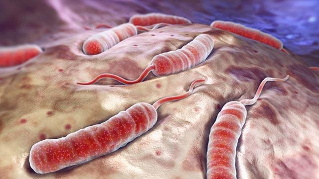 إدارة المخلفات الطبية في المراكز المؤقتة لعلاج الكوليرا