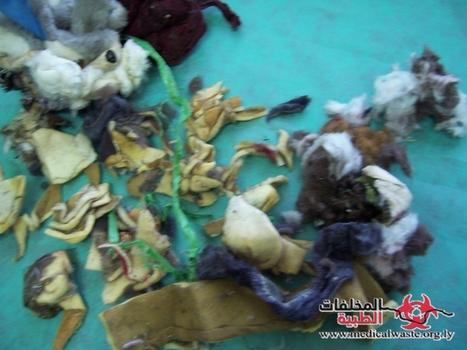 استعمال النفايات الطبية في حشو اللعب القماشية