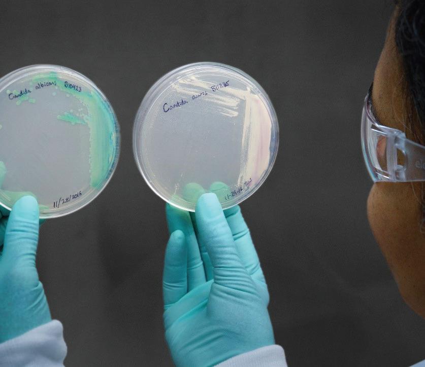 الكنديدا أوريس: جرثومة جديدة مقاومة للأدوية تنتشر في المستشفيات ومرافق الرعاية الصحية في العالم