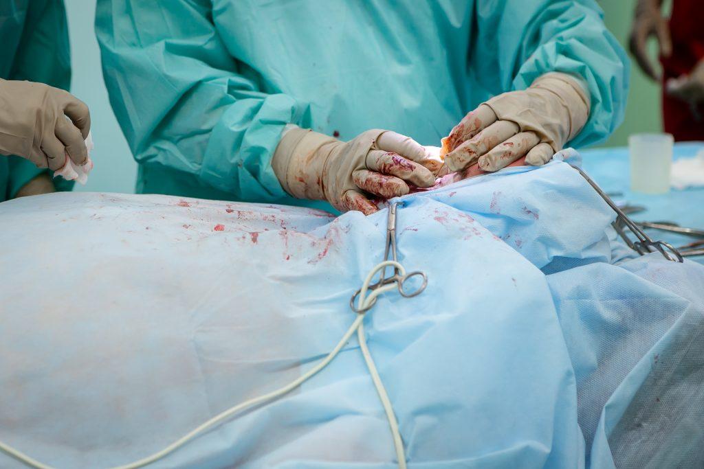 عدوى المستشفيات: منع حدوث الأوبئة المتوطنة الشائعة (الجزء السادس)