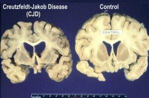 المخلفات الطبية وداء كروتزفيلد ياكوب وأمراض الأعتلال الدماغي