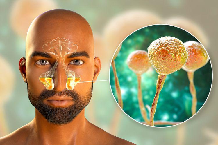 الفطر الأسود: أنواعه، انتشاره، تشخيصه، علاجه، الوقاية منه.